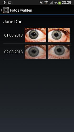 Diagnóstico ocular 1