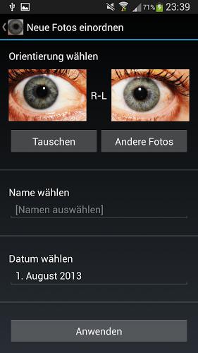 Diagnóstico ocular 2
