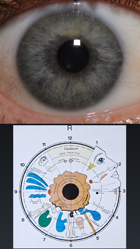Diagnóstico ocular 3