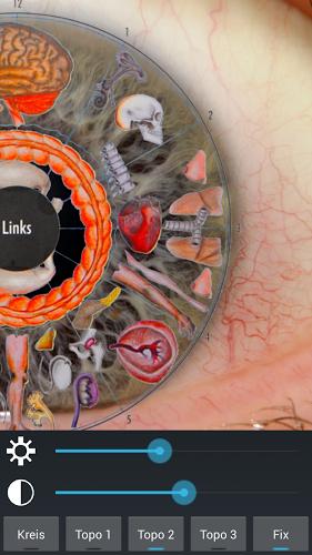 Diagnóstico ocular 4
