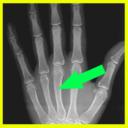 Radiografia real
